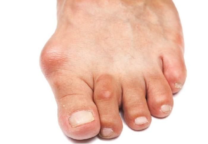 опух сустав большого пальца на ноге и болит как лечить