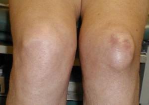 Киста в суставе колена