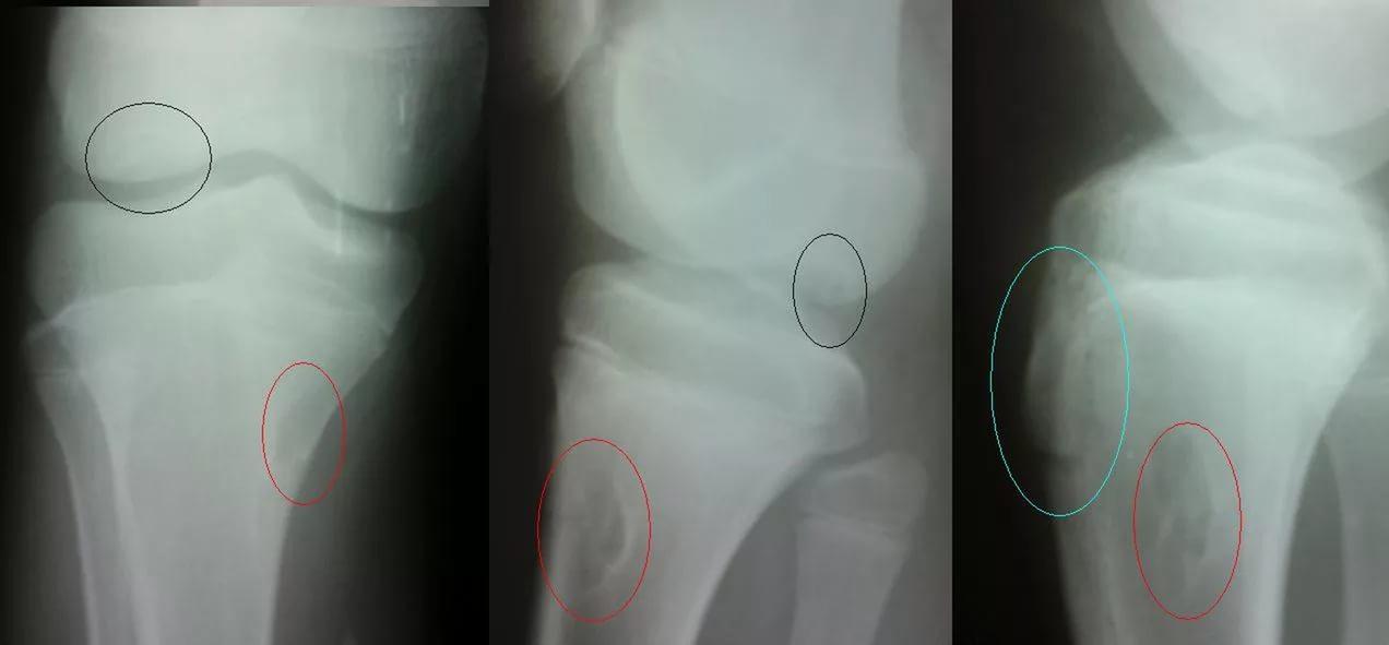 Болезнь Шляттера коленного сустава у подростка: лечение ...