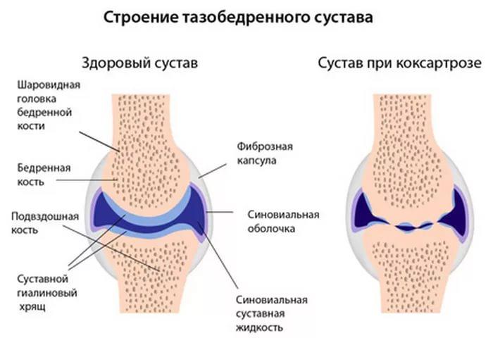 Как и чем лечить артроз тазобедренного сустава
