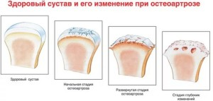Деформирующий остеоартроз тазобедренного сустава