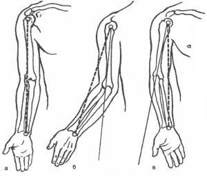 Контрактура локтевого сустава