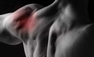 Тендинит надостной мышцы плечевого сустава