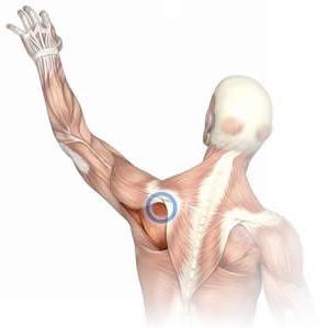 Отложении солей кальция в плечевом суставе лечение уколы в коленный сустав остенил цена