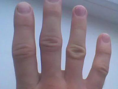 Распух сустав на руке и болит лечение тазобедренных суставов у детей