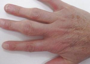 Опух сустав на пальце руки