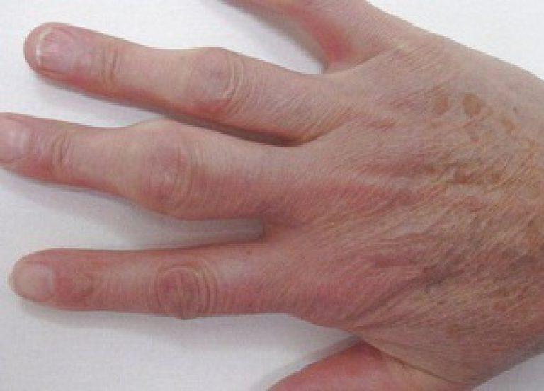что делать если болит сустав большого пальца на руке лечение