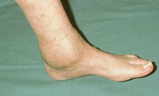 Воспаление голеностопного сустава: причины и лечение