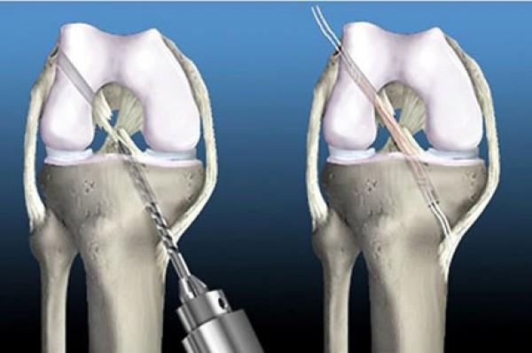 операция сшивание связок голеностопного сустава