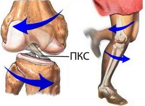 Пластика передней крестообразной связки коленного сустава