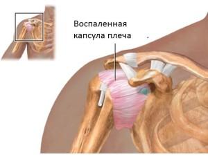 Воспаление капсулы плечевого сустава