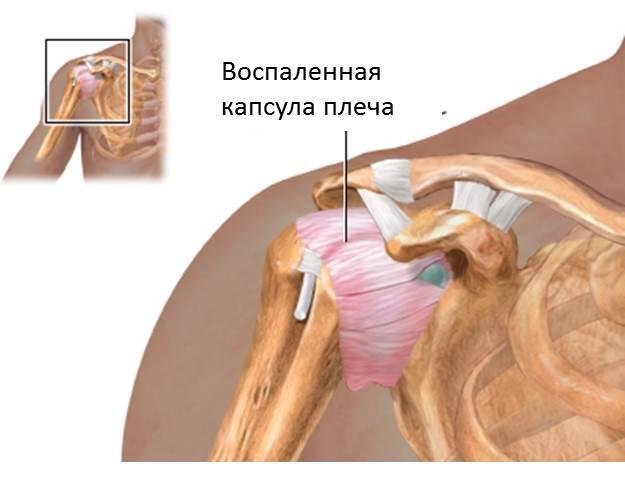 Адгезивный капсулит плечевого сустава: симптомы, лечение, упражнения
