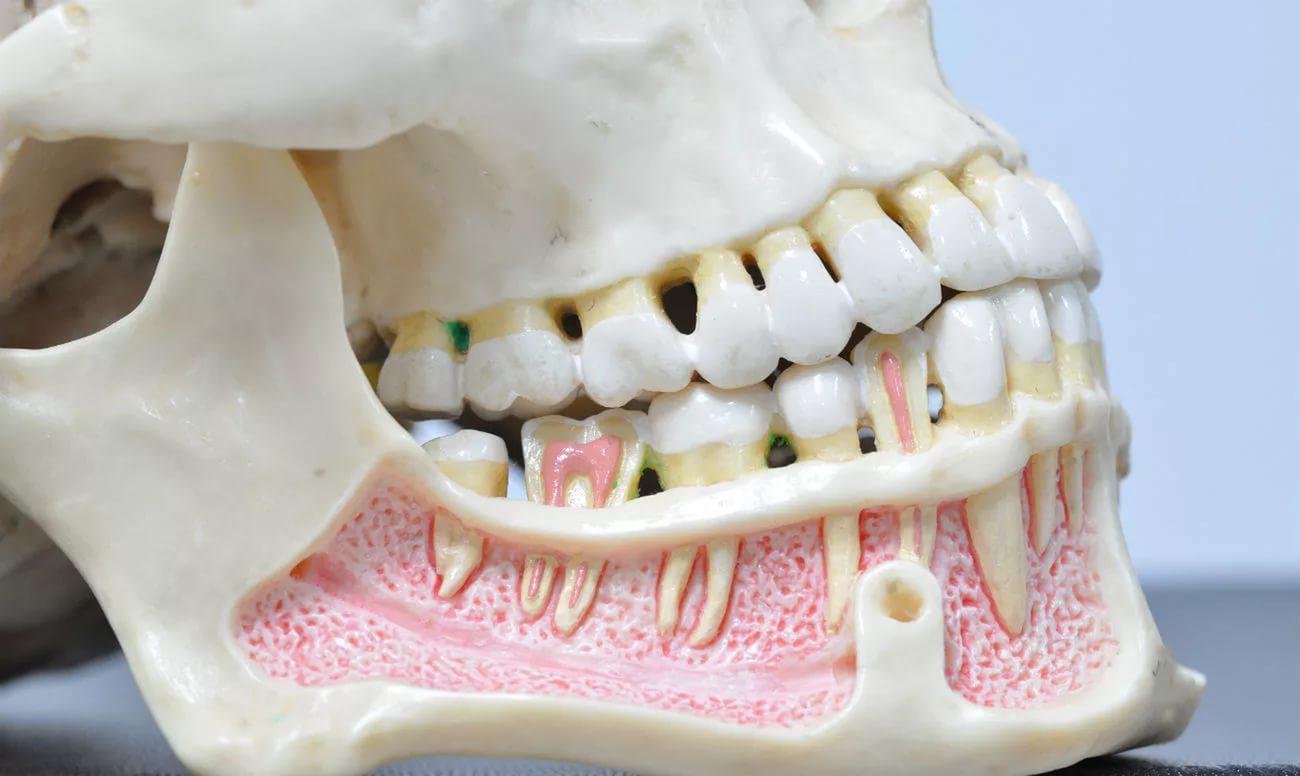 Артрит челюстного сустава: симптомы, лечение, к какому врачу ...