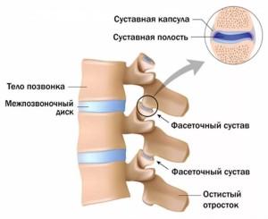 Артроз дугоотросчатых суставов позвоночника