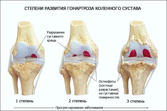 посттравматическая контрактура коленного сустава дифференциальный диагноз