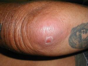 Гнойный бурсит локтевого сустава