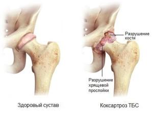 Коксартроз коленного сустава что это такое
