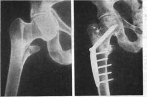 Ложный сустав после перелома шейки бедра