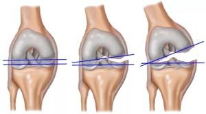Лечение надрыва связок коленного сустава