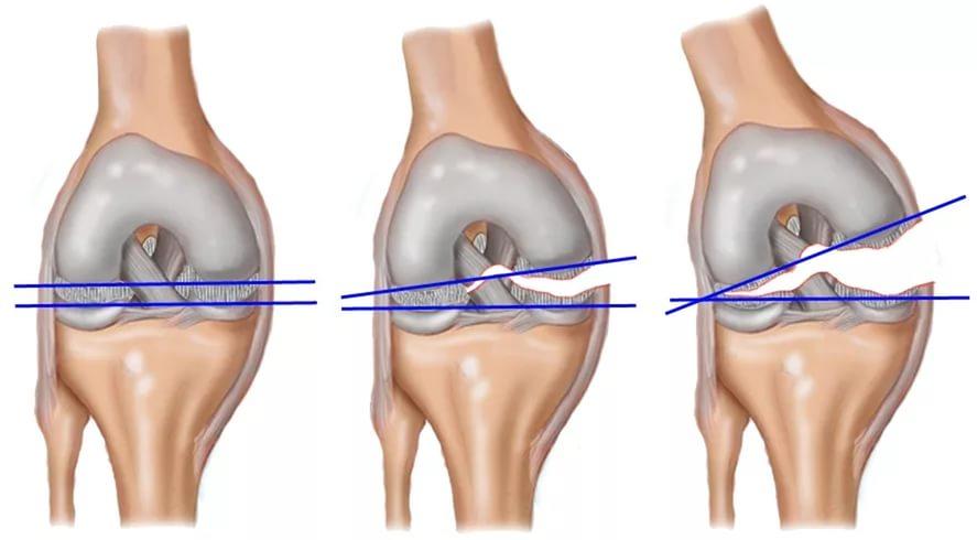 Надрыв связок коленного сустава: симптомы, лечение, сроки восстановления