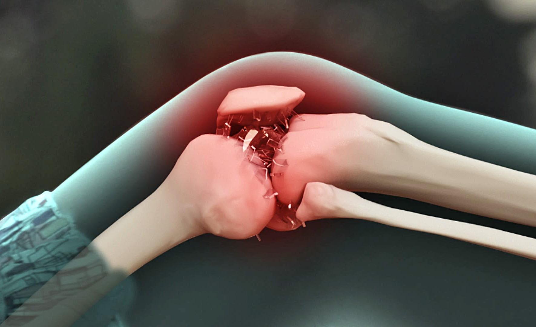 деформирующий остеоартроз коленного сустава массаж
