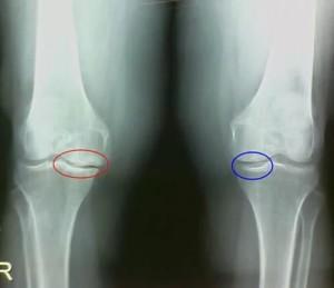 Остеофиты коленного сустава