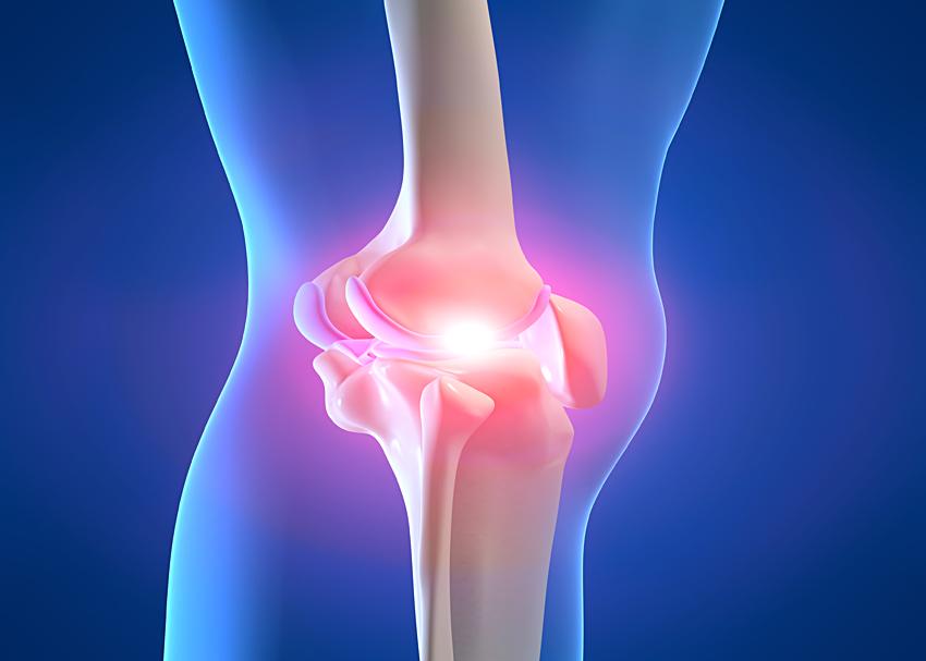 пателлофеморальный остеоартроз коленного сустава 3 степени