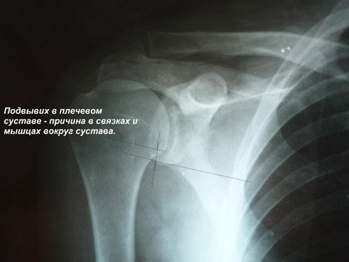 Подвывих плечевого сустава: симптомы и лечение у детей и взрослых