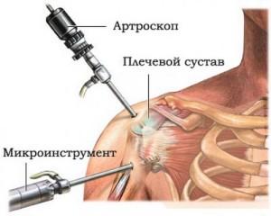 Полиартрит плечевого сустава