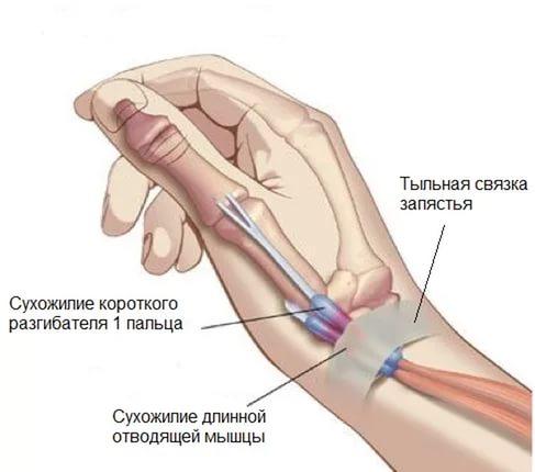 болит рука суставе