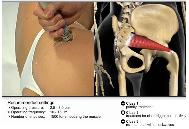 Коксартроз тазобедренный сустав лечение в домашних условиях 49