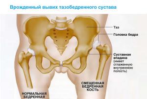 Ушиб тазобедренного сустава