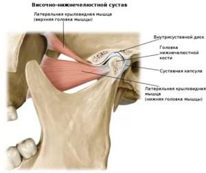 лечение смещения челюстного сустава