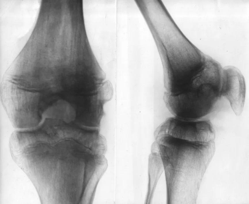 Хондроматоз коленного сустава: симптомы, лечение, народные средства