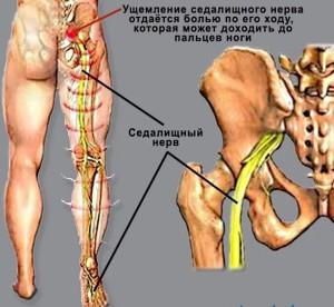 Защемление нерва в плечевом суставе