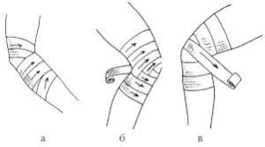 Как накладывается черепашья повязка на локтевой сустав