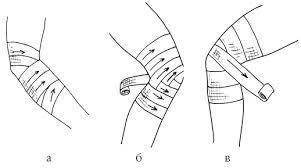 Правила накладывания тугой повязки на логтевой сустав обезболивающие мази при болях в спине и суставах отзывы