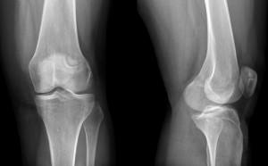 Рентген коленного сустава: что показывает, норма