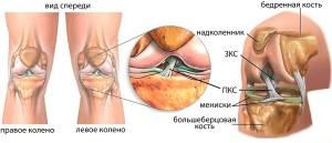 повреждения передней крестообразной связки коленного сустава