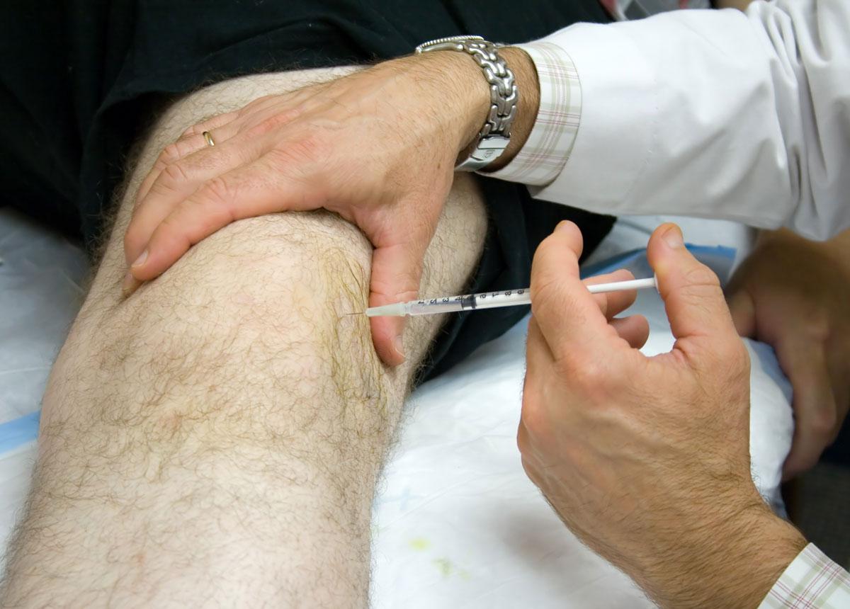 Блокада коленного сустава при артрозе: техника выполнения