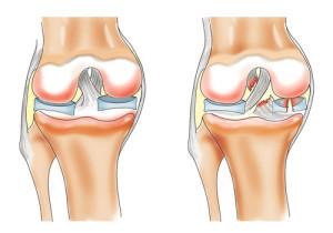 лечение повреждения медиального мениска коленного сустава