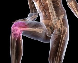 лечение нестабильности коленного сустава