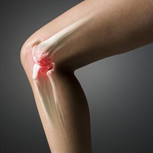 субхондральный склероз коленного сустава