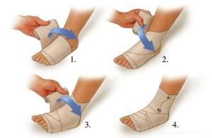 накладывание восьмиобразной повязки на голеностопный сустав