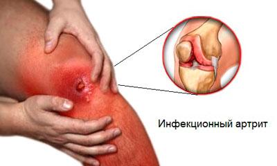 Основная опасность инфекционного артрита
