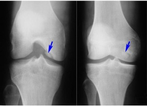 лечение суставной мыши коленного сустава