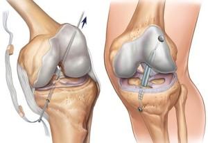 крестообразная связка коленного сустава