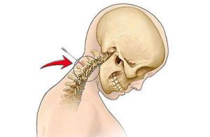 Как диагностируется шейный радикулит