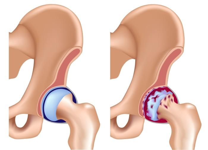 Коксит тазобедренного сустава у детей лечение