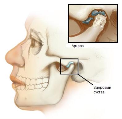 Артроз височно-нижнечелюстного сустава: симптомы, лечение